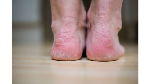 avoiding blisters due to running shoes